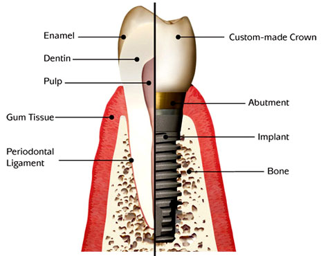 model showing the parts of a dental implant