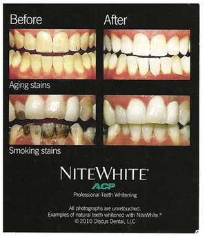 Infographic comparing smiles before and after teeth whitening